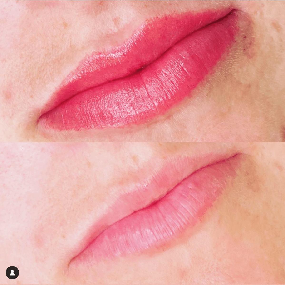 lip fillers lip blush lavish cincinnati
